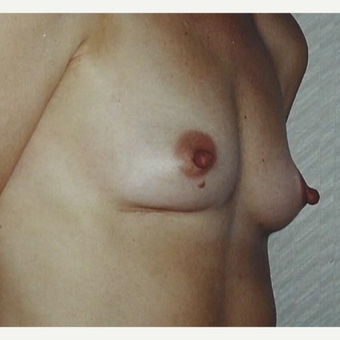 Breast Augmentation before 3629223