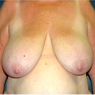 65 year old woman treated with Breast Lift before 3665849