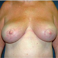 65 year old woman treated with Breast Lift after 3665849