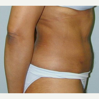 Tummy Tuck after 3208565