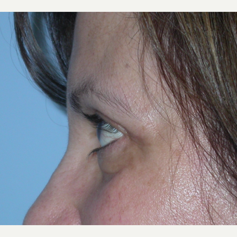 55-64 year old woman treated with Eyelid Surgery after 3070059