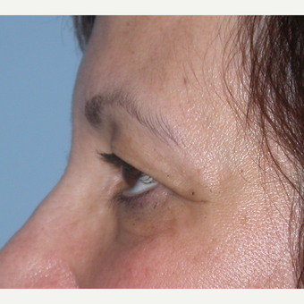55-64 year old woman treated with Eyelid Surgery before 3070059