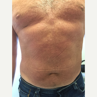 55-64 year old man treated with Diastasis Recti Repair after 3799958