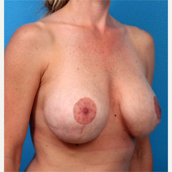 35-44 year old woman treated with Breast Implants before 3219092