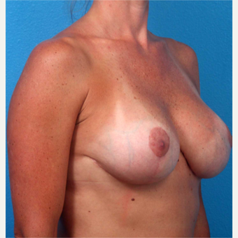 35-44 year old woman treated with Breast Implants after 3219092