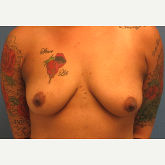25-34 year old woman treated with Breast Augmentation before 3695003