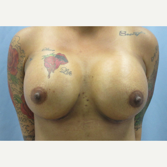 25-34 year old woman treated with Breast Augmentation after 3695003