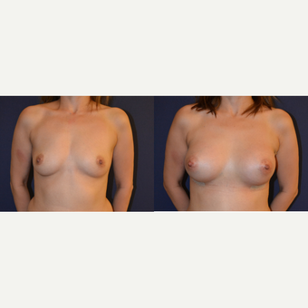 25-34 year old woman treated with Breast Augmentation before 3238786