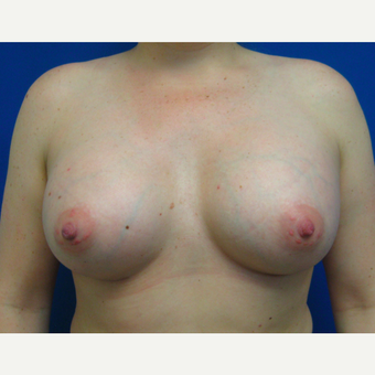 25-34 year old woman treated with Breast Augmentation after 3017031