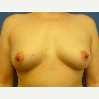 25-34 year old woman treated with Breast Augmentation before 3017031