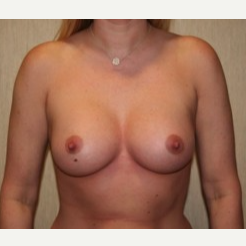 35-44 year old woman treated with Breast Implants after 3304165