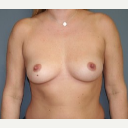 35-44 year old woman treated with Breast Implants before 3304165