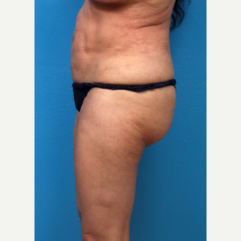 55-64 year old woman treated with Liposuction before 3266052