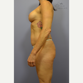 45-54 year old woman treated with Mommy Makeover before 3391861