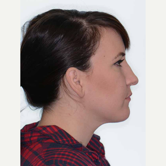 25-34 year old woman treated with Orthognathic Surgery after 2419070