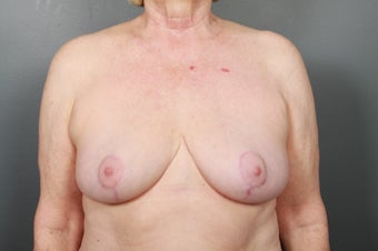 Breast Implant Removal after 1339458