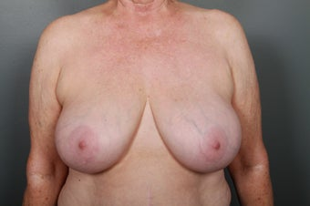 Breast Implant Removal before 1339458