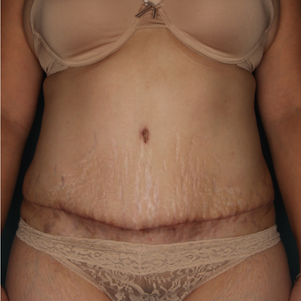 35 - 44 year old woman treated with Tummy Tuck after 3616038
