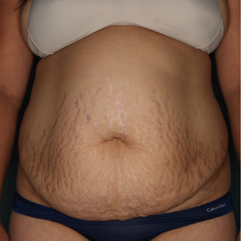 35 - 44 year old woman treated with Tummy Tuck before 3616038