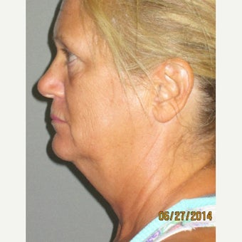 50 year old woman treated with Lifestyle Lift before 2242536