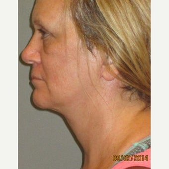 50 year old woman treated with Lifestyle Lift after 2242536