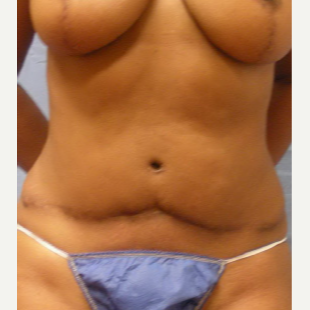 45-54 year old woman treated with Tummy Tuck before 3537202