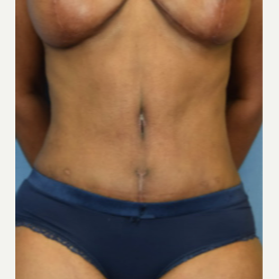 45-54 year old woman treated with Tummy Tuck after 3537202