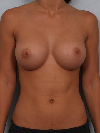 Sientra 350cc Classic Anatomical Breast Implants after 1357527