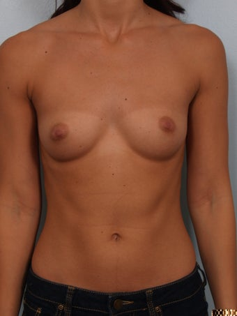 Sientra 350cc Classic Anatomical Breast Implants before 1357527