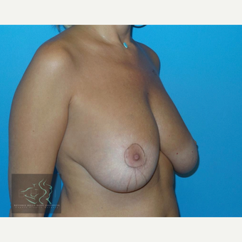 45-54 year old woman treated with Breast Lift before 3591208
