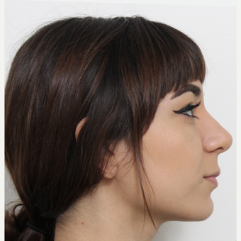 18-24 year old woman treated with Rhinoplasty after 3372938