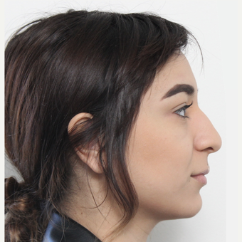 18-24 year old woman treated with Rhinoplasty before 3372938
