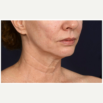 45-54 year old woman treated with Lower Face Lift