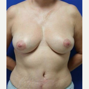 45-54 year old woman treated with Breast Lift after 3037724