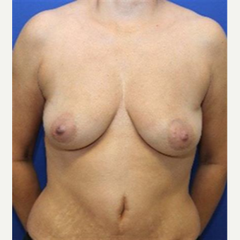 45-54 year old woman treated with Breast Lift before 3037724