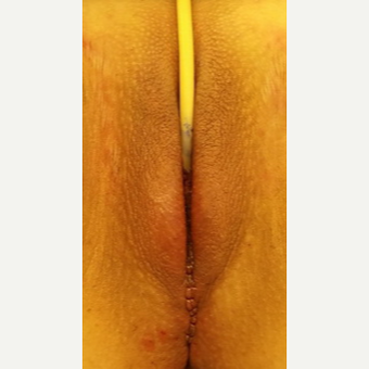 Vaginoplasty/Labiaplasty after 3738769