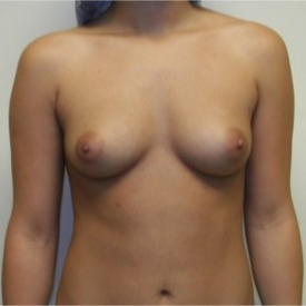 25-34 year old woman treated with Breast Augmentation before 3131750