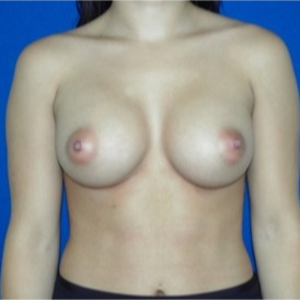 25-34 year old woman treated with Breast Augmentation after 3131750