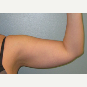 Woman treated with liposuction of the arms and arm lift before 2706881