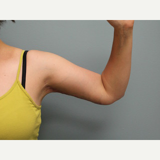 Woman treated with liposuction of the arms and arm lift after 2706881