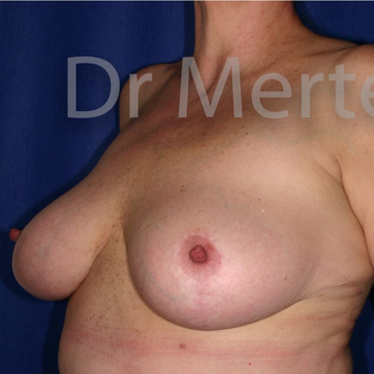 Breast Reduction after 3681209