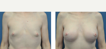 35-44 year old woman treated with Breast Augmentation before 3776554