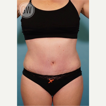 35-44 year old woman treated with Tummy Tuck after 3016672
