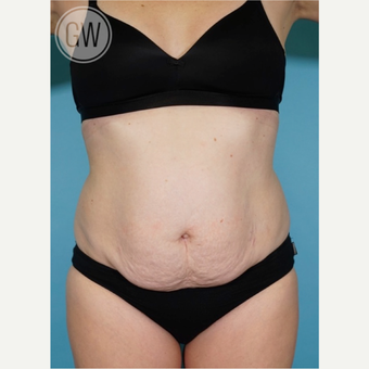 35-44 year old woman treated with Tummy Tuck before 3016672