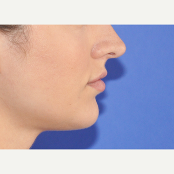 25-34 year old woman treated with Lip Augmentation before 3300135