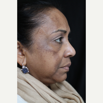 55-64 year old woman treated with Cosmelan