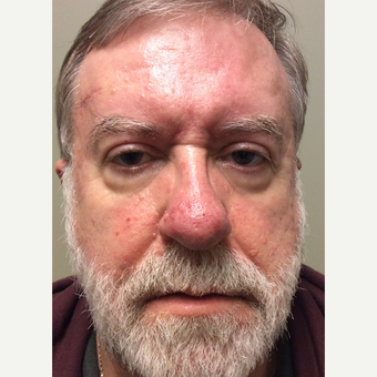 55-64 year old man treated with Ptosis Surgery