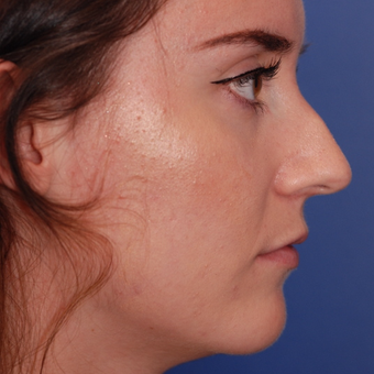 18-24 year old woman treated with Rhinoplasty before 3624144