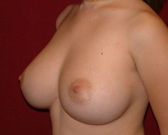 Breast Implants 683412