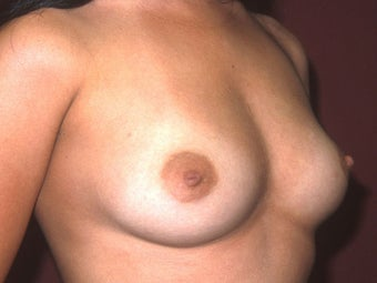 Breast Implants before 683412